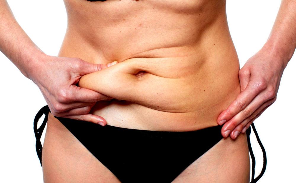 Liposucción con obesidad