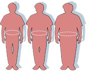 La cirugía de liposucción solo ha de realizarse en aquellas personas que tengan un peso normal.