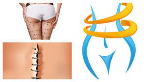 Alrededor de una semana después de la cirugía, podrán retirarse los puntos de una liposucción.