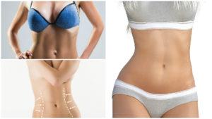 Para minimizar las cicatrices tras la liposucción, la operación se planifica al máximo.
