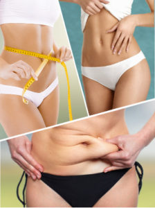 Hay numerosos tipos de liposucción para lograr eliminar la grasa localizada en el paciente.