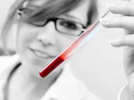 Es importante determinar la causa de tener las plaquetas bajas.