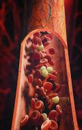 Una alteración de los valores normales de plaquetas puede tener consecuencias serias en la salud del paciente.
