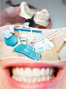 La etapa quirúrgica de colocación de los implantes dentales dura 15 minutos.