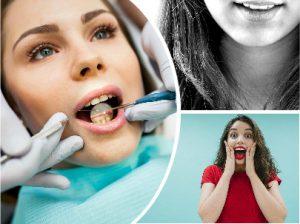 Para el cuidado de los implantes dentales, es esencial asistir a las revisiones periódicas fijadas previamente.