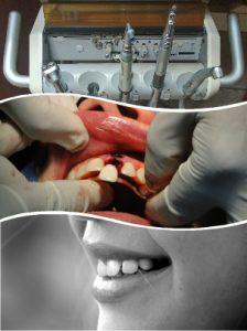 Hay varias diferencias entre implantes dentales y coronas, pero su fin coincide.