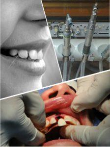 Casi nunca se llega a sentir dolor con los implantes dentales, sino leves molestias.