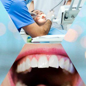 Los mini-implantes presentan una serie de beneficios en relación a los implantes dentales completos.