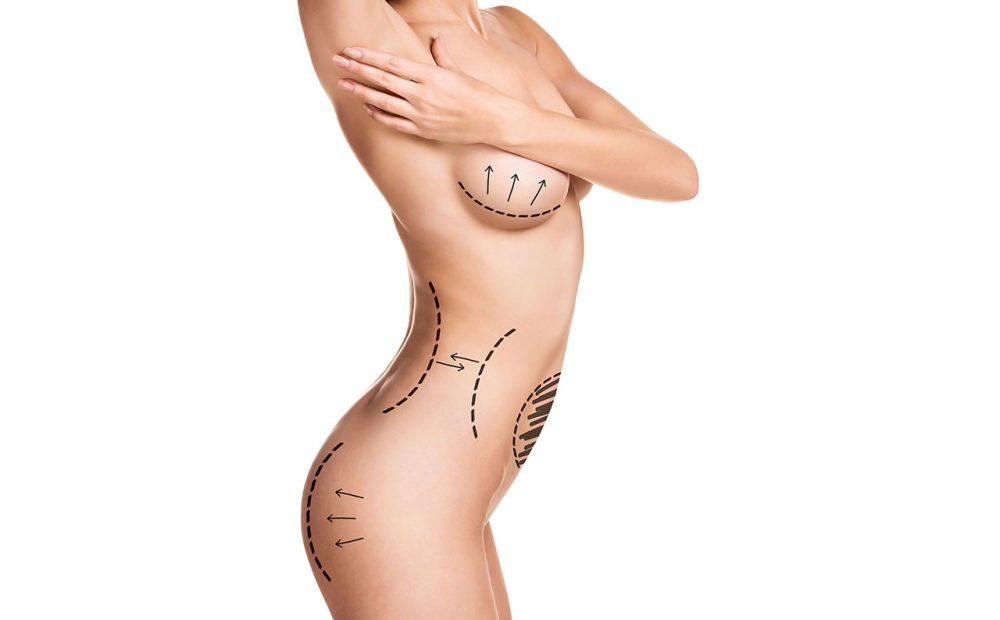 Zonas corporales poco demandadas en la liposucción