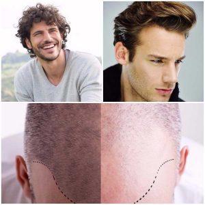El microinjerto de pelo es la solución definitiva para la alopecia.