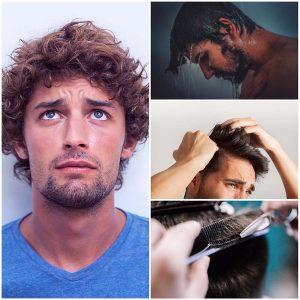 Para un buen resultado del injerto capilar es importante conocer el tipo de cabello del paciente.