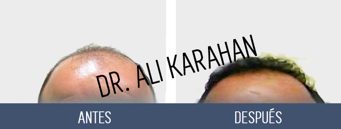 cirujano capilar Dr. Ali Karahan