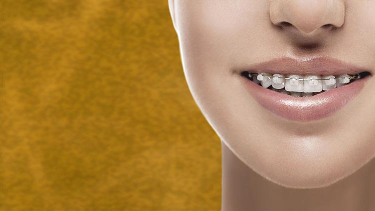 La periodoncia es una de las enfermedades más frecuentes que pueden afectar a las encías.