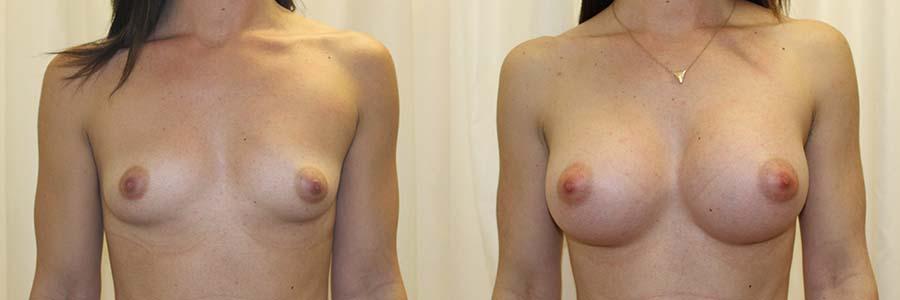 El antes y después del aumento de senos en Barcelona es evidente desde el punto de vista estético.
