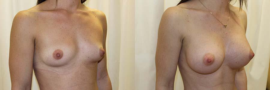 Las cicatrices del aumento de pecho son imperceptibles.