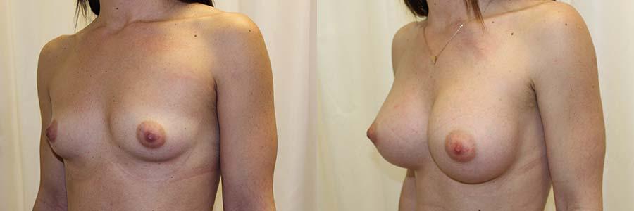 Antes de la intervención, el cirujano muestra fotos de antes y después del aumento de pecho en Barcelona.