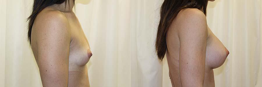 Es importante que antes y después del aumento de mamas, la paciente siga las indicaciones del especialista.