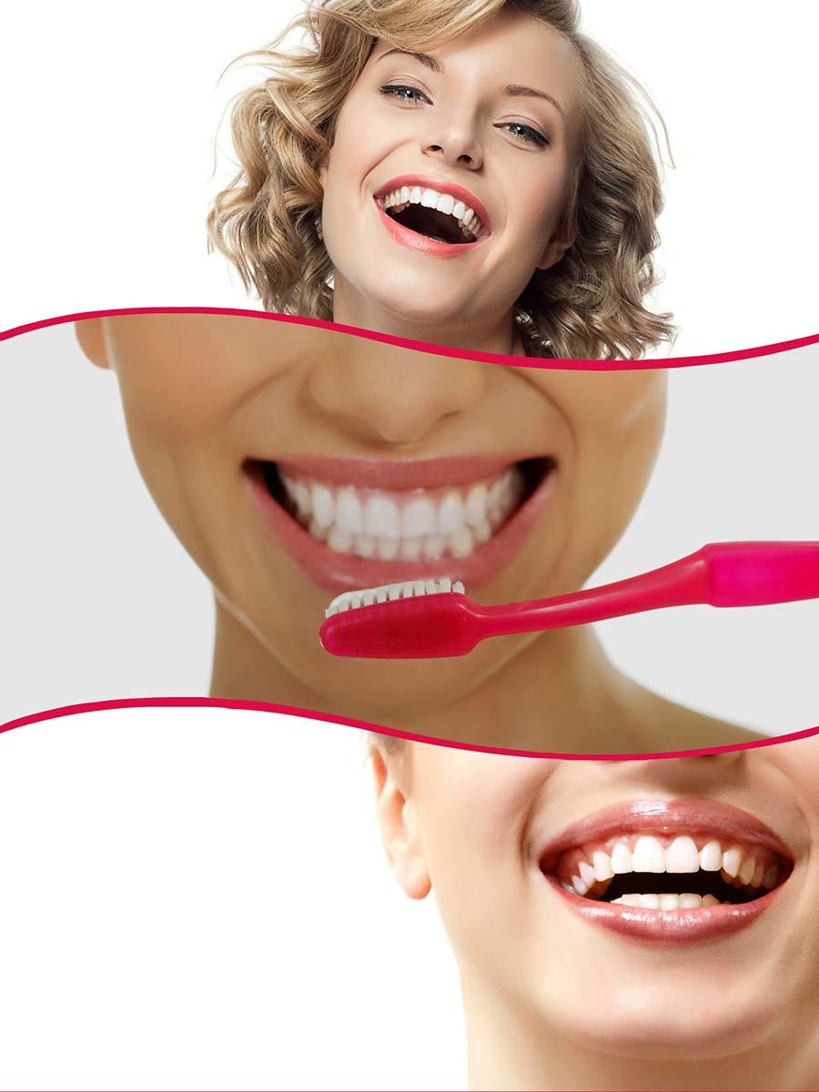 Entre sus beneficios, la ortodoncia invisalign en Barcelona permite una mejor higiene bucodental.
