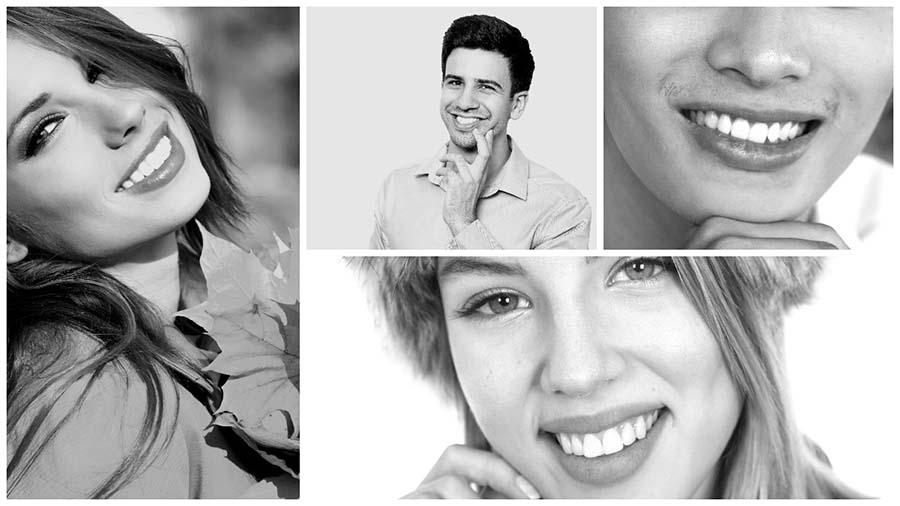 Es importante valorar los riesgos del blanqueamiento dental en Alicante.