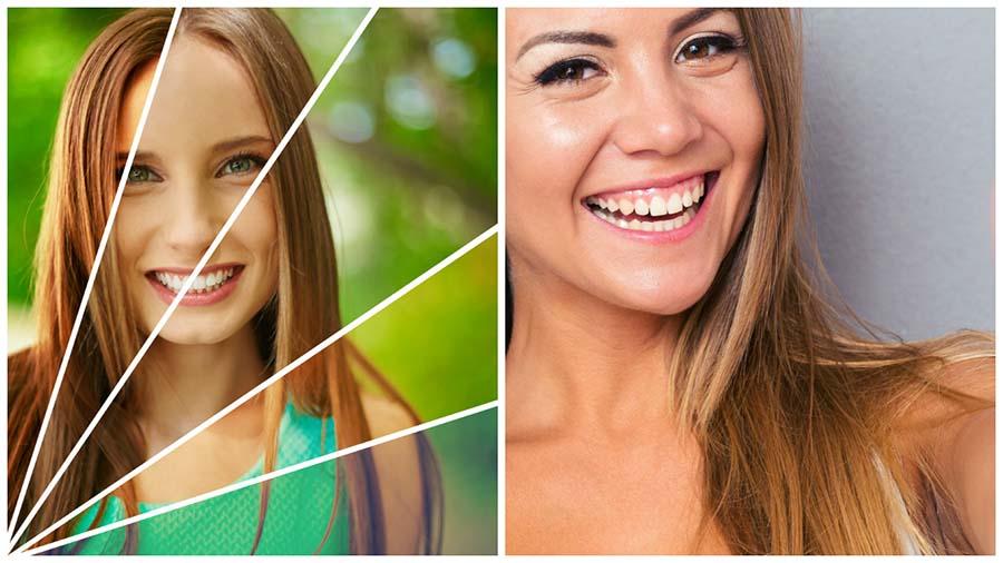 El blanqueamiento dental en Barcelona es un método que permite aclarar el color de los dientes.
