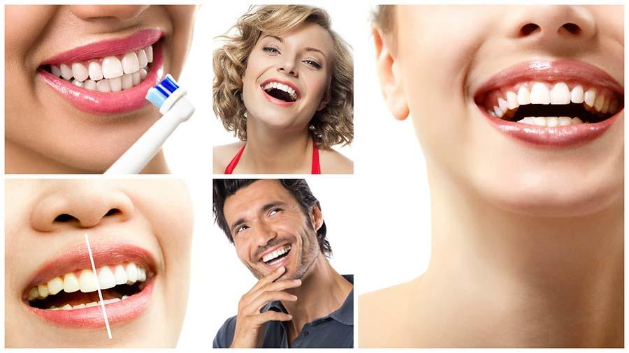 No todos los dientes son aptos para un blanqueamiento dental en Badajoz.