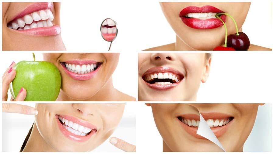 Antes de optar por este tratamiento, es conveniente probar otras alternativas para aclarar los dientes amarillos.