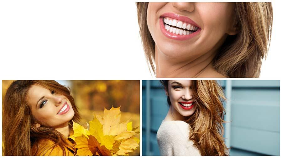 Existen varias técnicas de blanqueamiento dental en Granada.