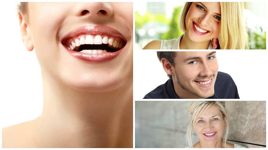 El dentista recomendará los mejores productos para el blanqueamiento dental en Madrid.