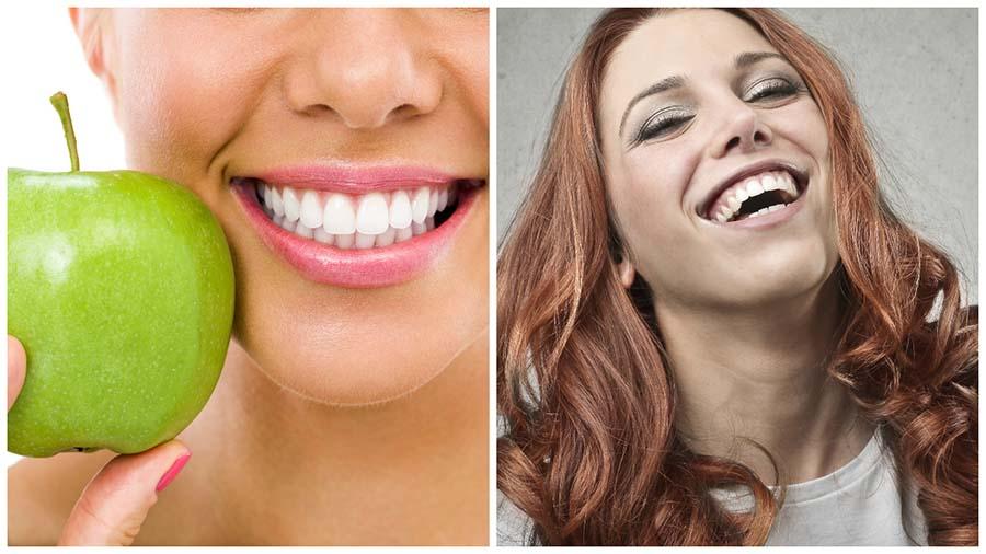 Con el blanqueamiento dental en Madrid se mejora el aspecto de los dientes.
