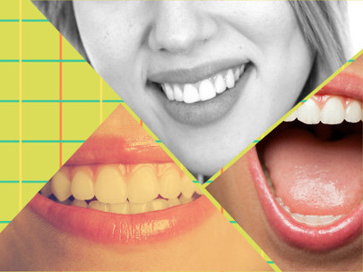 El coste de este procedimiento depende de diferentes factores, por lo que no puede determinarse con precisión.