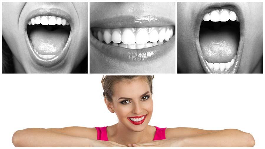 El blanqueamiento dental combinado es uno de los métodos más eficaces.