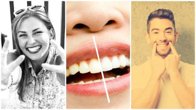 Fumar tampoco es nada recomendable ni antes ni durante el blanqueamiento dental en Las Palmas de Gran Canaria.