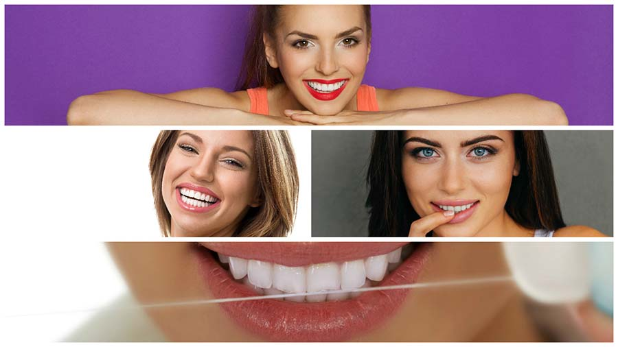 Existen varios tipos de blanqueamiento dental en Valencia.