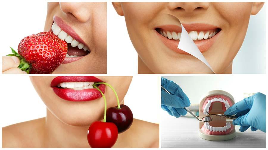 Los expertos recomiendan no obsesionarse con tener unos dientes excesivamente blancos.