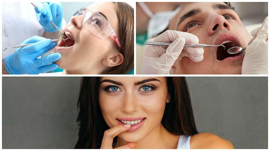 Existen diferentes productos para blanquear los dientes.