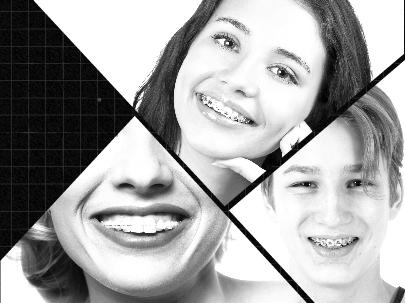 Prácticamente cualquier posible defecto en los dientes puede corregirse gracias a estos brackets en Almería.
