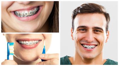 Durante esta etapa hay que mantener a conciencia una buena higiene tanto de los dientes como de los aparatos.