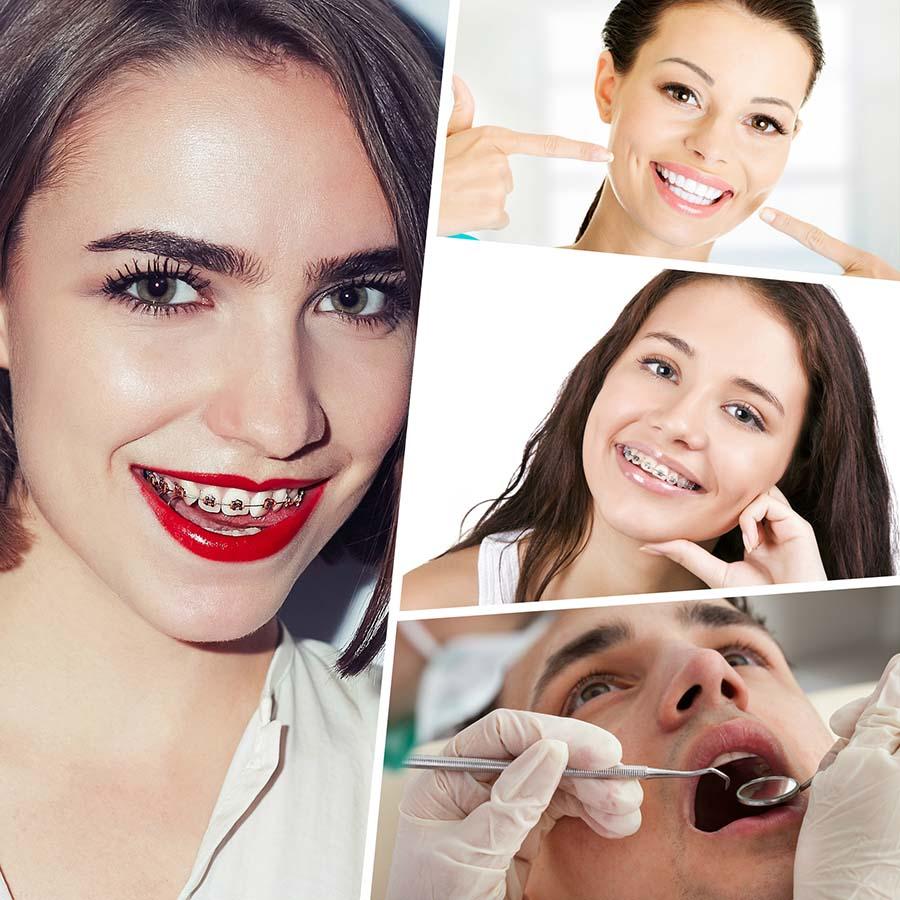 Existen diferentes brackets en Barcelona que cuidan la estética de la dentadura durante el proceso, entre ellos los de zafiro.