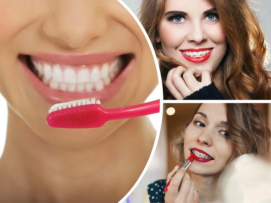 En las primeras consultas el dentista explicará cómo se deben limpiar los brackets en Barcelona.