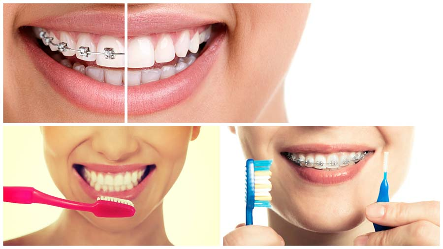 En algunos casos, el paciente deberá usar retenedores después de quitarse el aparato dental.