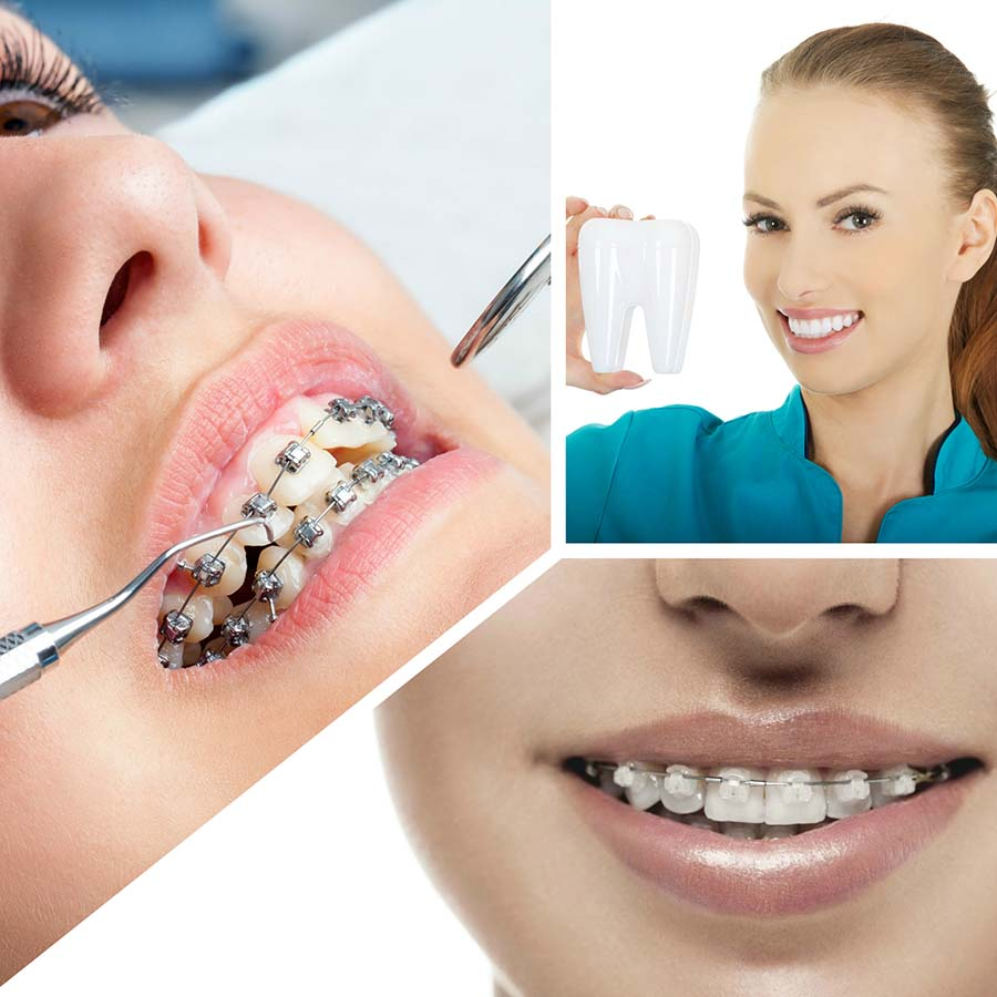 La ortodoncia mejora la estética de la sonrisa y la función de la mandíbula.