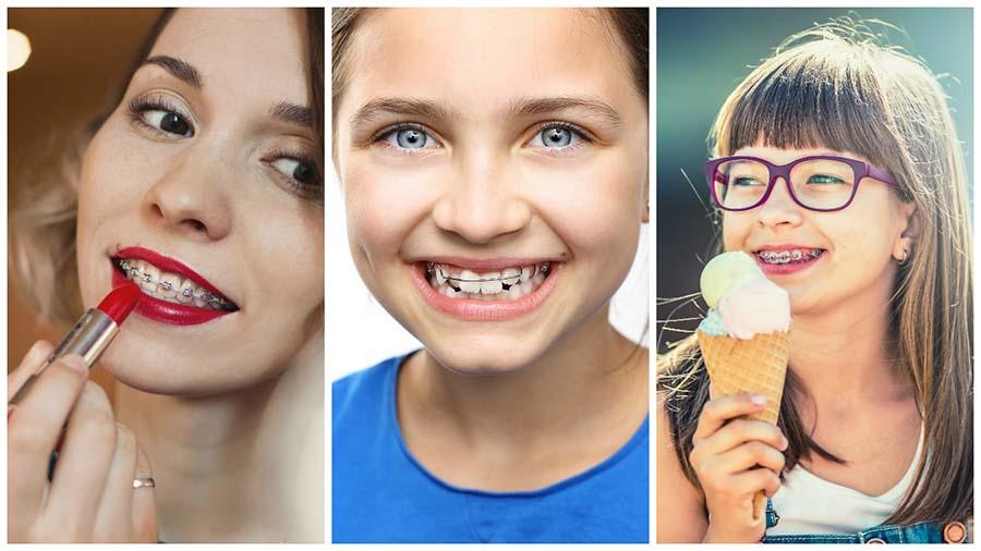 La ortodoncia con brackets en Granada puede utilizarse a cualquier edad.