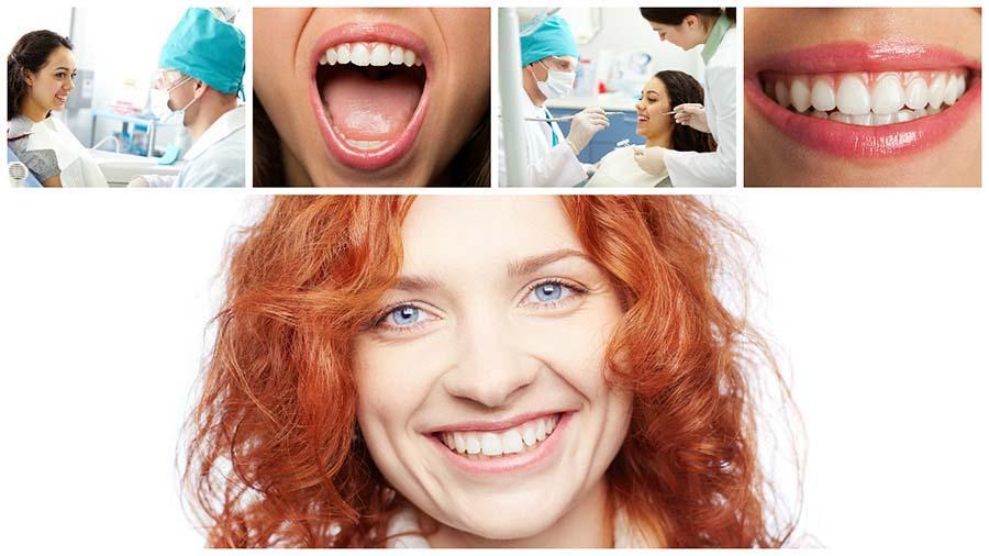 La ortodoncia lingual es aquella en la que se ponen los brackets  en Granada por la cara interior de los dientes.
