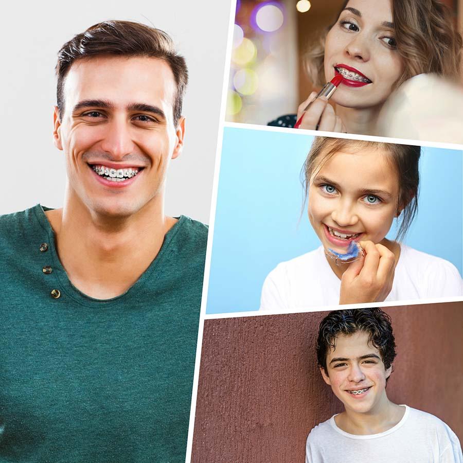 Los brackets metálicos son el tipo de ortodoncia más eficaz para resolver problemas de malposición.