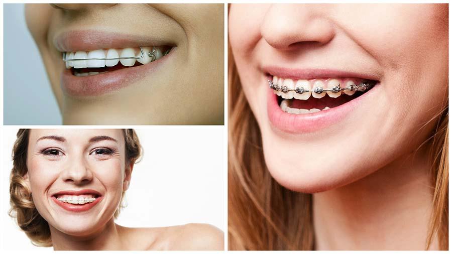 El especialista ayudará a elegir el mejor tipo de brackets para tratar tu caso.