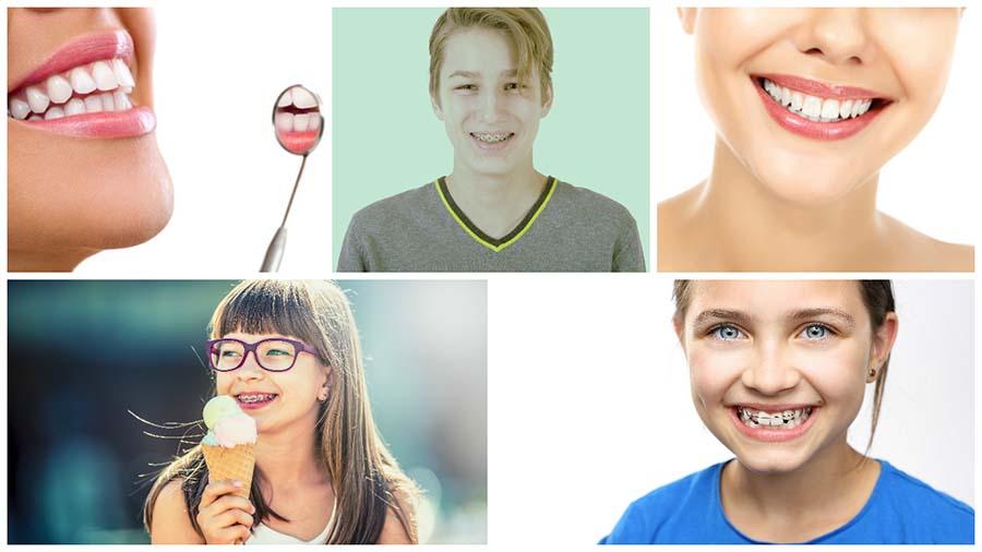 No hay edad mínima ni máxima para un tratamiento de ortodoncia con brackets en Oviedo.