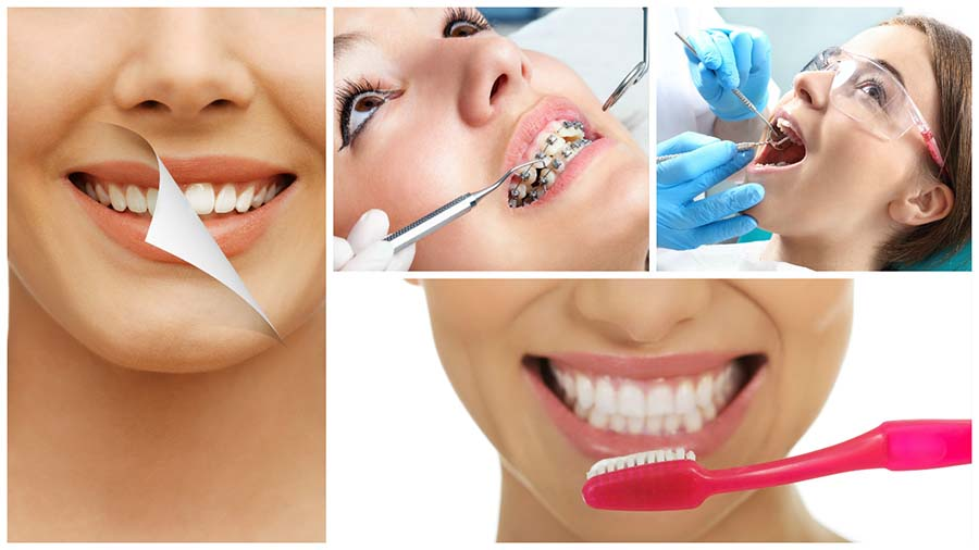 Los brackets en Oviedo sirven para mejorar la posición y alineación de los dientes.