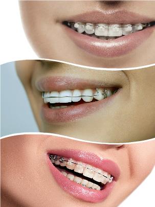 Multitud de anomalías dentales pueden solucionarse con cualquiera de estos tratamientos de ortodoncia.