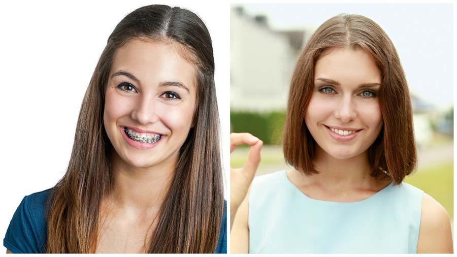 Los brackets en Valencia son el tratamiento de ortodoncia más utilizado para conseguir una sonrisa bonita.