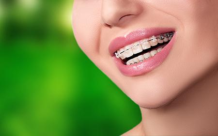 Los aparatos dentales con brackets de zafiro son los preferidos por los adultos.
